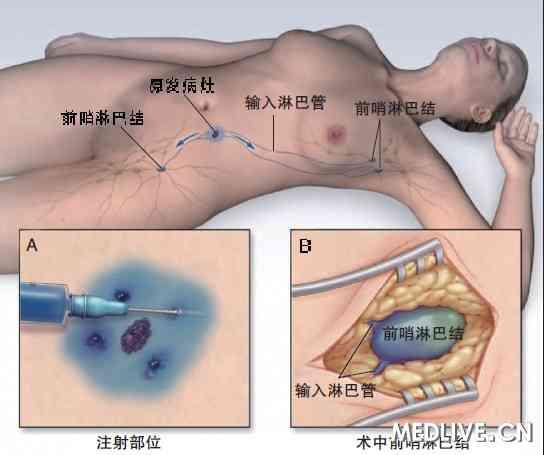 血管结方法图解