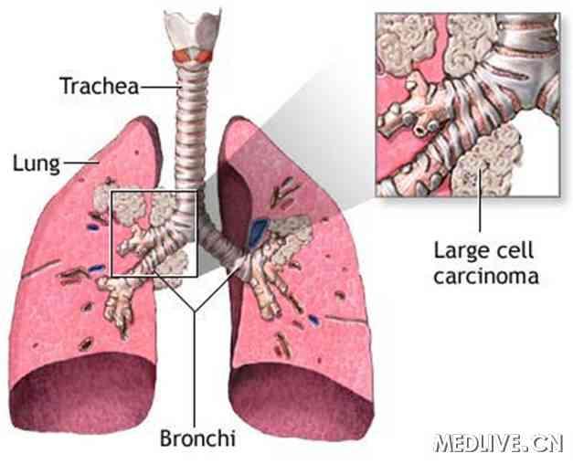 肺部结构图科学
