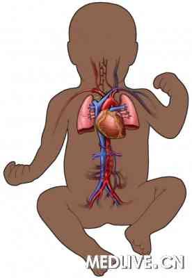 动脉血气采集矢量图