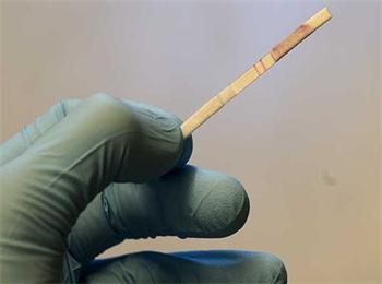 科学家开发出试纸测癌法 - gloryking3 - gloryking3的博客