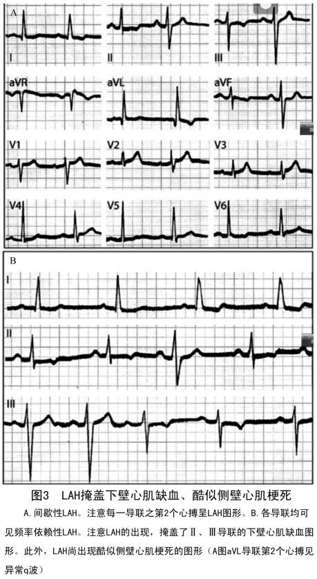 黄元铸 复杂性左束支分支阻滞的心电图诊断