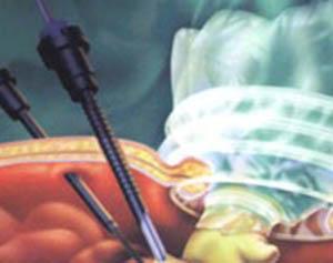 腹腔镜手术治疗费用_玉林阴道炎治疗费用_微生态平衡疗法_治疗阴