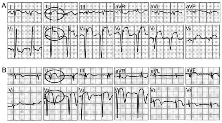 青花瓷降b萨克斯五线谱-【心电图特点】   ①患者心肌梗死的临床诊断确定;   ②心电图存在前