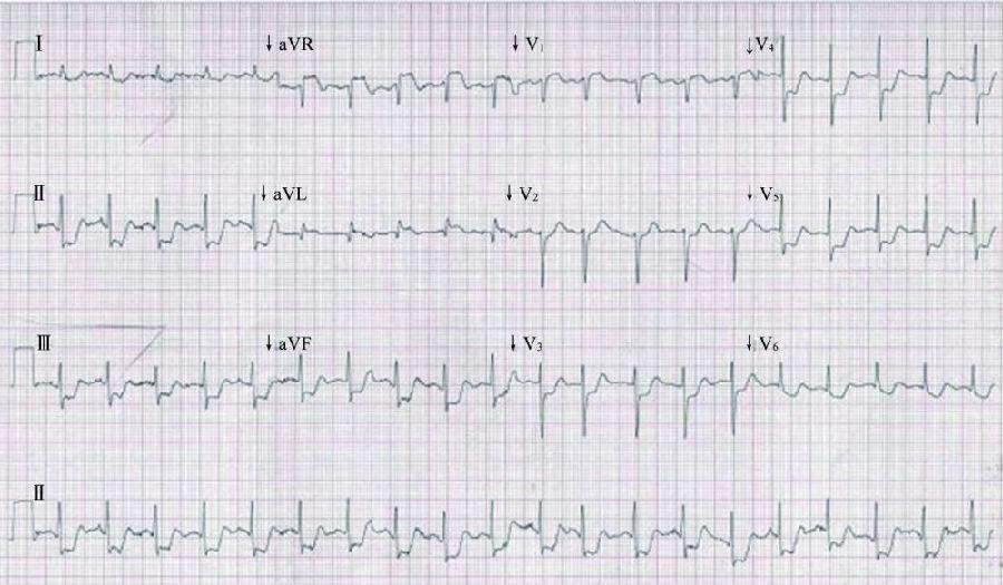 冠状动脉左主干狭窄心电图特征 6 2现象