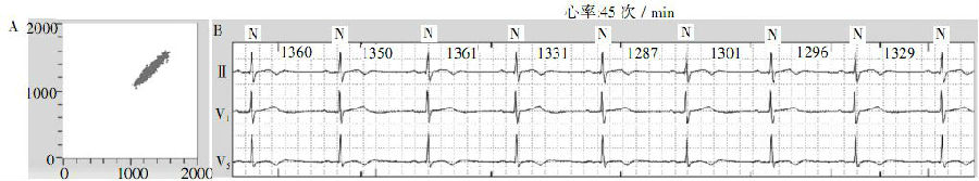 图2窦性心动过缓的lorenz-rr散点图及相应的心电图.