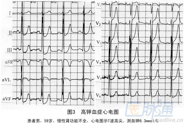 张海澄 电解质紊乱与心电图