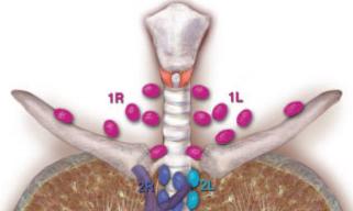 图文总结 纵隔淋巴结的分区
