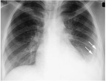 和纵隔淋巴结,尤其好发于右侧气管旁区域,可增大.淋巴结增大在成