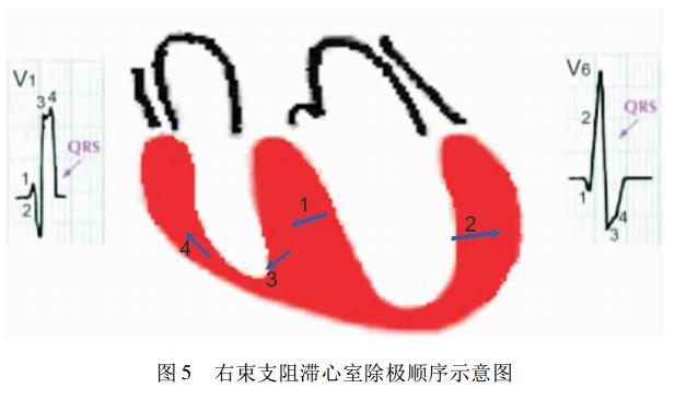 急性心肌梗死合并束支阻滞心电图诊断