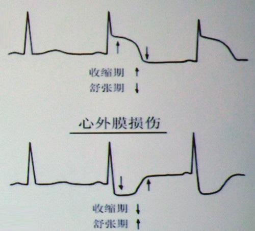 电路 电路图 电子 原理图 500_453