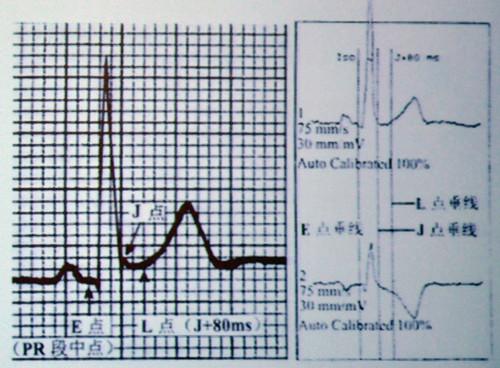 e点:等电位点,pr段中点   j点:qrs波与st段交点   l点:st段测量点