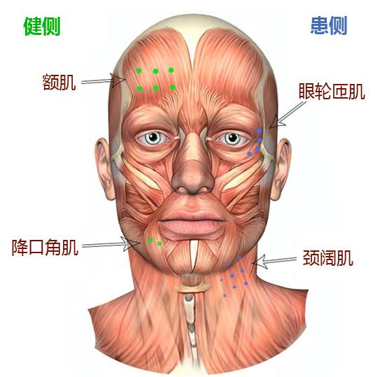 特发性面神经麻痹综述 二 多学科治疗