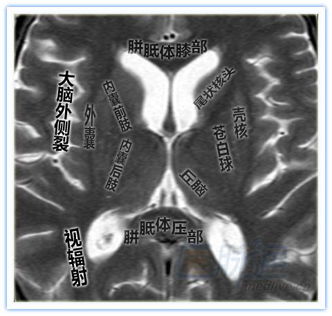 简洁清晰的脑部特定区域断层解剖图谱