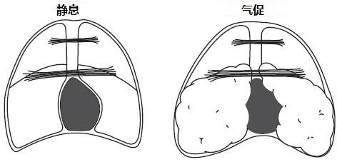 """慢阻肺的告白:如何拯救亲密的""""心脏""""图片"""