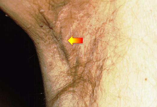 皮肤乳头状瘤铅笔画