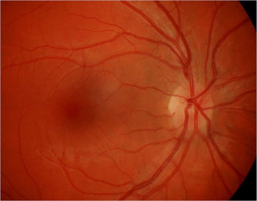 神经科医师应该知道的视神经炎鉴别诊断(一)