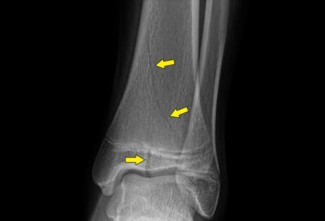 �^4獼���x�o_首页 学术交流 医术人文         骨骺损伤—儿童特有的骨折类型