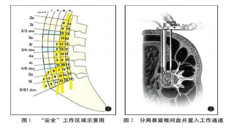 膝关节内是交叉韧带,髋关节内是圆韧带.