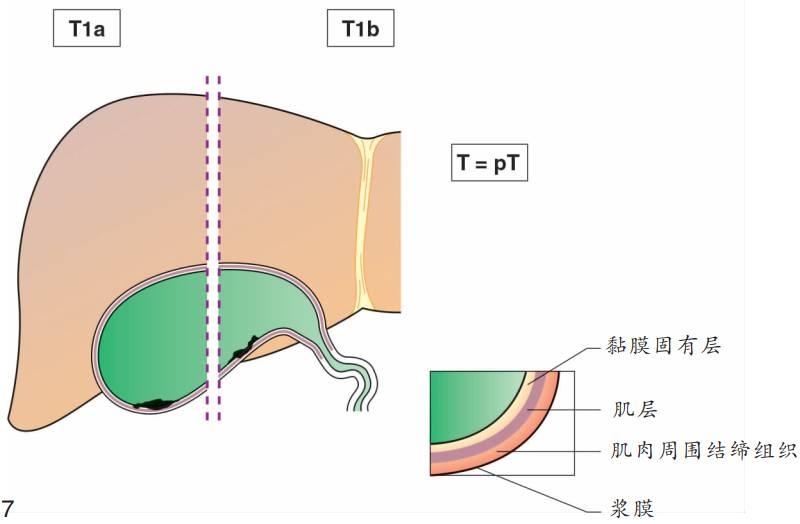 [有图有真相]胆囊癌TNM分期图文解析 - d19571004 - d19571004的博客