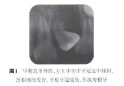弯根牙的临床综合治疗及正畸早期矫治的可能性