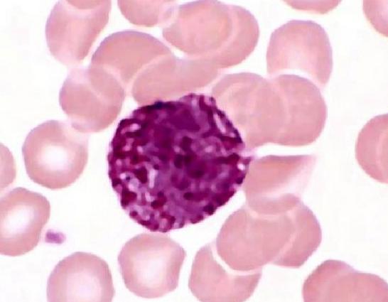 快速掌握│粒细胞正常与异常形态