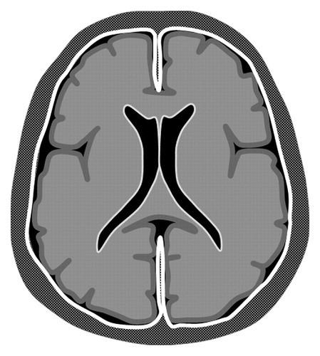 脑膜强化的常见类型与鉴别诊断