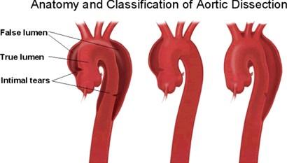 主动脉夹层治疗现况