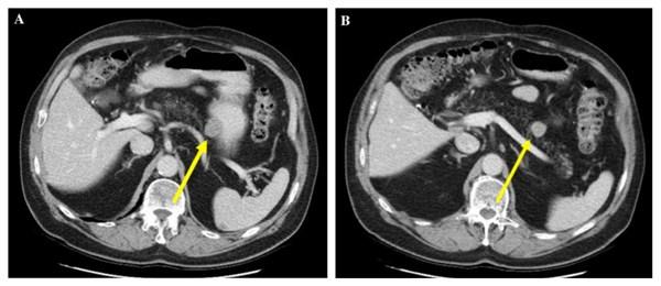 胃肠道间质瘤的影像表现