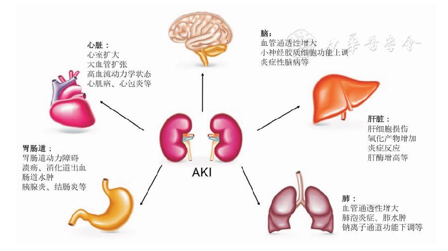 对脑组织的影响 AKI患者可以出现神经系统并发症,包括谵妄、意识改变、癫痫、甚至死亡。无论AKI恢复后是否进展为慢性肾脏疾病(CKD),患者脑卒中的发病率都成倍升高,对卒中和病死率的影响同糖尿病相仿。此外,痴呆、可逆性后部脑病综合征等并发症也有相关报道。 虽然其具体机制尚未明了,但目前考虑主要是炎症细胞、炎性介质和尿毒症毒素造成上述神经系统症状。动物试验显示AKI可能造成海马区和纹状体Toll样受体4(TLR4)表达上调,脑皮质和海马区血管通透性增加、血脑屏障破坏、炎症细胞因子升高、神经细胞核固缩和小胶
