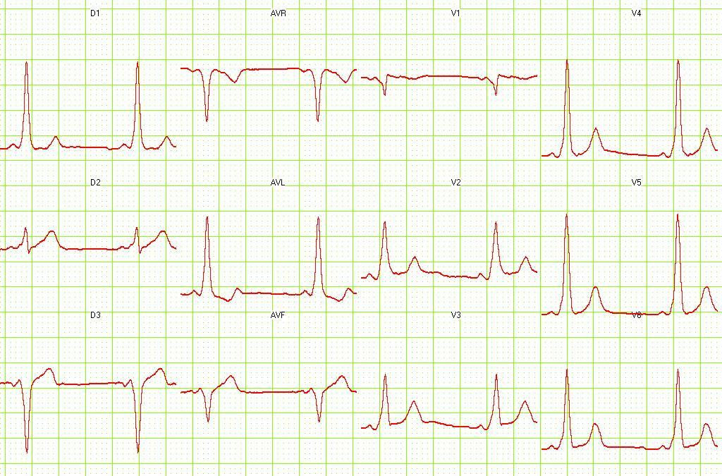 心电图老也搞不清的那些波啊 δ波