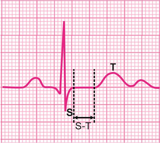 图文详解各种各样的ST段异常 轻松解读心电图