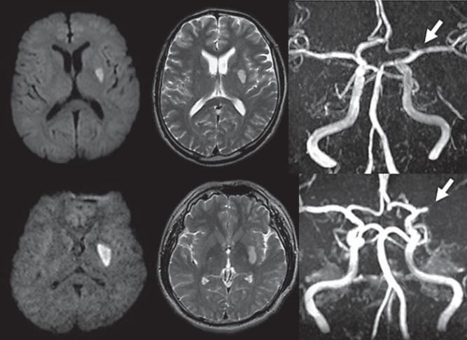 腔隙性脑梗死 这个临床诊断,可以慢慢作古了