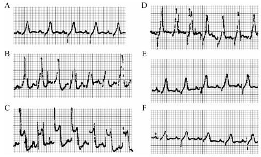 变异型心绞痛的心电图特征