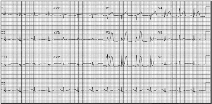 一文搞定超急性T波的心电图特征和鉴别诊断