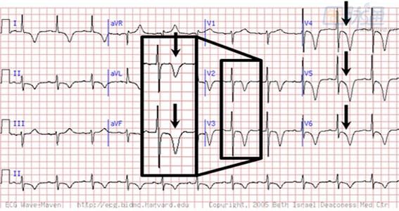 电路 电路图 电子 工程图 平面图 原理图 567_300