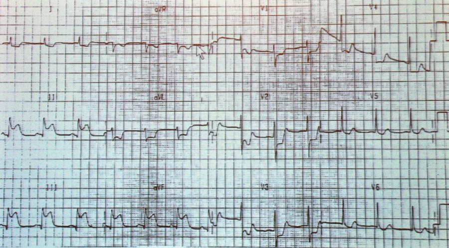 方丕华教授:图解心电图波形和心律分析步骤