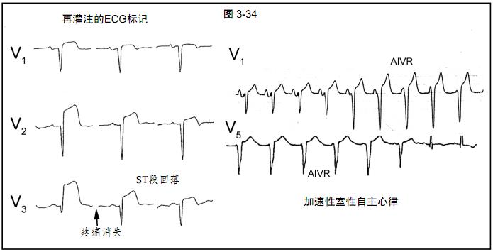 图文详解:心肌缺血和梗死的心电图
