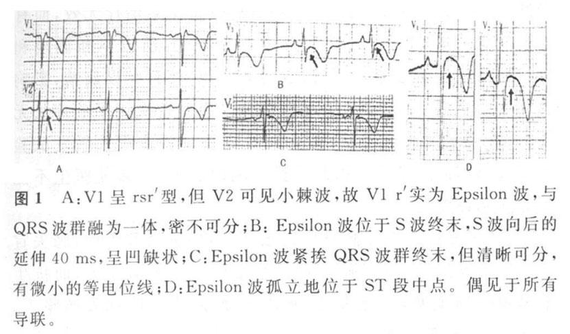 Epsilon波 不止是ARVC,别忘了这些疾病