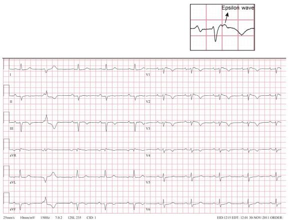 图6 心电图表现为窦性心律,一度房室传导阻滞,左前分支阻滞,v1~v3导联epsilon 波,st-t改变,病理结果显示为心脏结节病