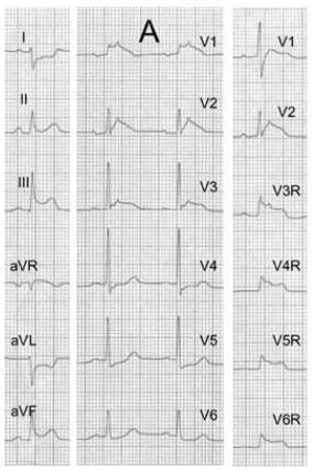 图7 下壁、右室心肌梗死,ii、iii、avf、v1~v3、v3r~v6r导联st段抬高(注意:v1~v3、v3r~v6r导联存在明显的epsilon 波)