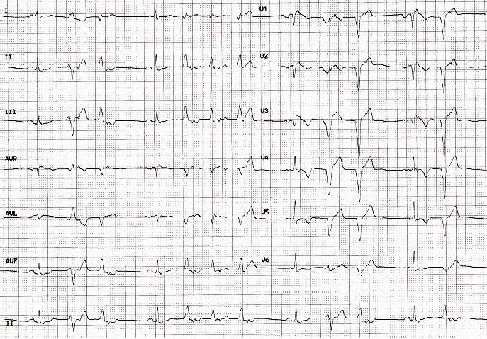图4 arvc患者心电图,除了典型的epsilon波外,窦律时v1-v3导联t波倒置