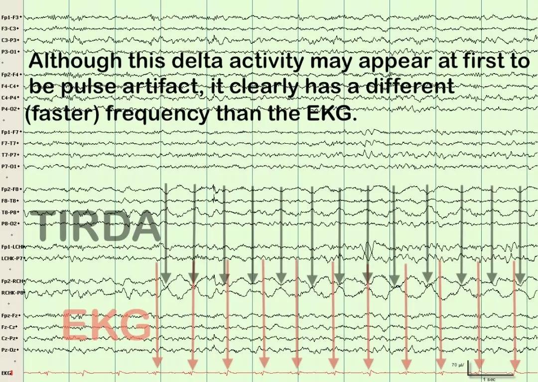 成人口对口吹气频率_伪差篇 最一目了然的成人脑电图图谱丨一键收藏