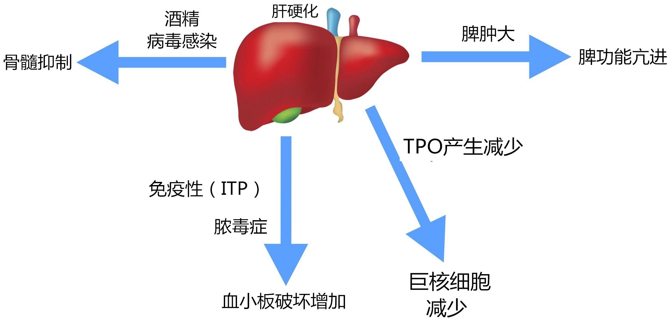肝硬化并发血小板减少的原因和治疗手段