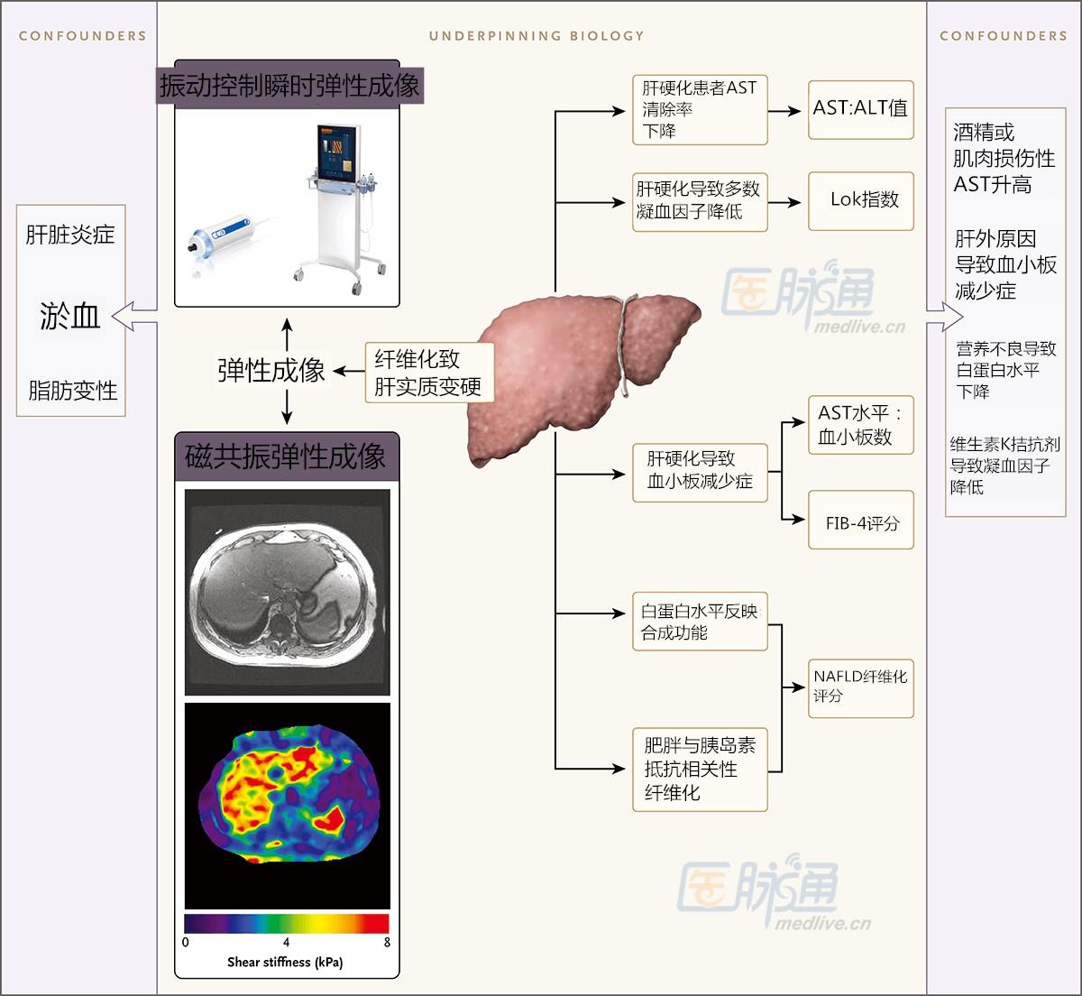 诊断肝纤维化,这些无创方法你都知道吗?|临床必备
