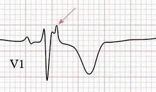 Epsilon波,一个拗口名字的来龙去脉 识 图 寻踪