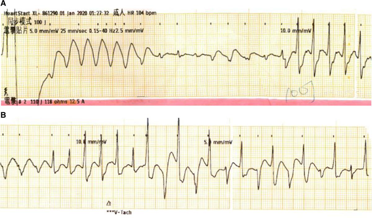 异位心动过速心电图